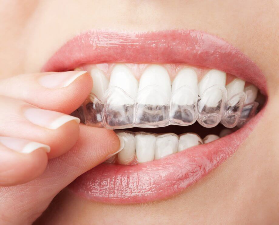 Invisalign Specialist - Creating Smiles Dental - St. Petersburg & Clearwater, FL