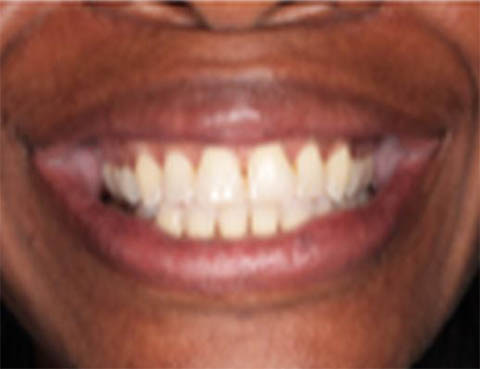 Accelerated Invisalign - Creating Smiles Dental - Clearwater & St. Petersburg FL